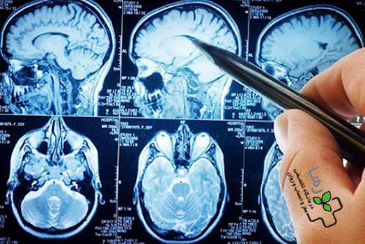 جراح-مغز-و-اعصاب-وستون-فقرات.jpg