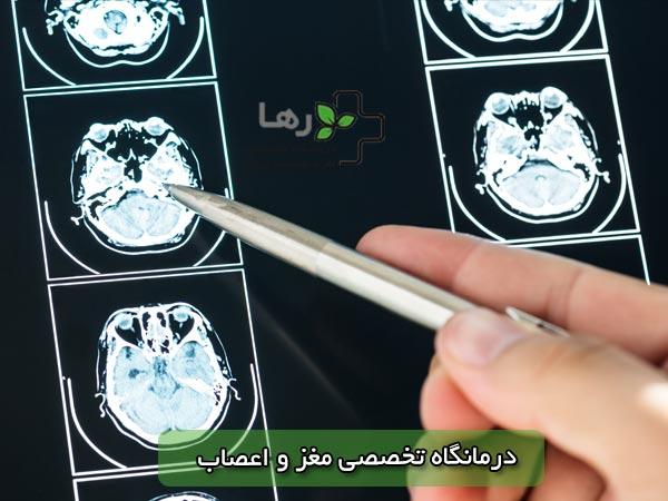 بهترین متخصص مغز و اعصاب